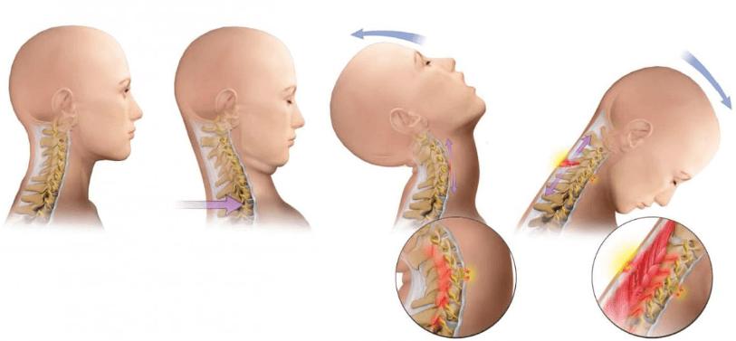 indemnizacion por latigazo cervical
